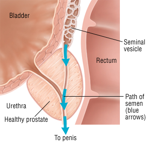 Retrograde ejaculation occurs when the semen enters into the bladder, instead of the penis, during orgasm. Although an orgasm does occur, very little semen is ejaculated. This condition can be caused by medications, health conditions, or surgeries that affect the nerves and muscles controlling the bladder opening. Not considered harmful, retrograde ejaculation is often only treated when associated with male infertility. Men with retrograde ejaculation often have dry orgasms, so very little semen is ejaculated during climax. After sexual intercourse, the urine appears cloudy because it contains sperm. If these symptoms occur, tell your physician when you meet with the doctor. In our Andrology lab firstly we will exam your urine for semen. Usually, the male partner will empty his bladder, masturbate until orgasm is reached, and then leave a urine specimen afterwards. If a high volume of semen is noted in the urine, then you have retrograde ejaculation. Patients experiencing infertility due to retrograde ejaculation will most likely need IUI or ICSI to achieve a pregnancy. In both instances, the male partner will urinate, masturbate until orgasm is reached, and then urinate again. Our laboratory will centrifuge the sample to separate the sperm and prepare it for insemination via IUI or ICSI, depending on your physician's recommendation.