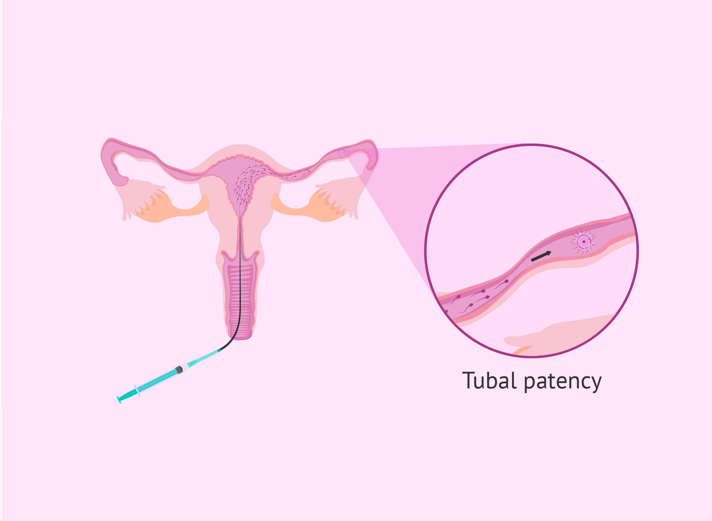 egg-fertilization-in-fallopian-tube Tubal patency